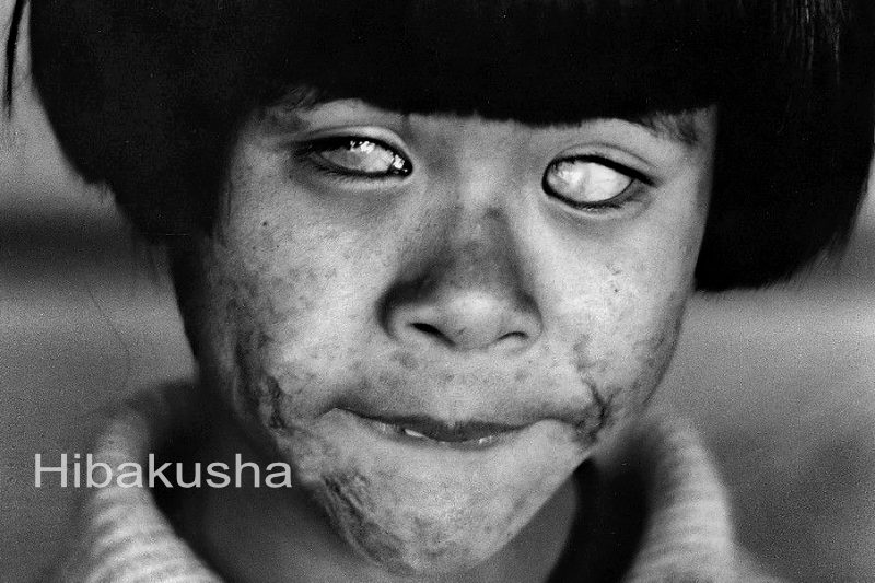 HIBAKUSHA - I saw the big ball of fire! Afterwards, the world became for me forever dark!
